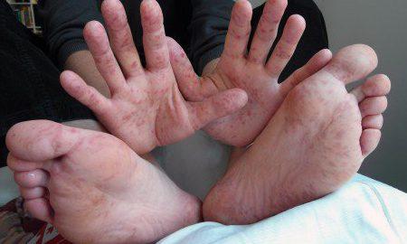 В Тюмени стало больше случаев заболевания корью - в период с начала мая по начало августа количество возросло с 6 до 50 человек